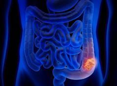 Cancer de colon japon. Cancer Colon Stadiul 4 Speranta De Viata